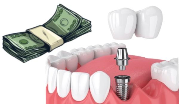 قیمت هر واحد بریج دندان ۳۰۰ تا ۴۰۰ هزار تومان است