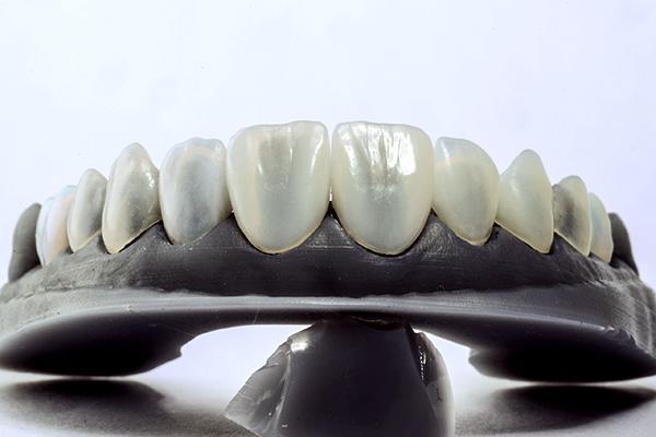 ماکت لمینت دندان