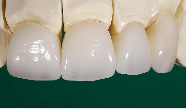 لمینت سرامیکی از پرکاربردترین انواع لمینت دندان است