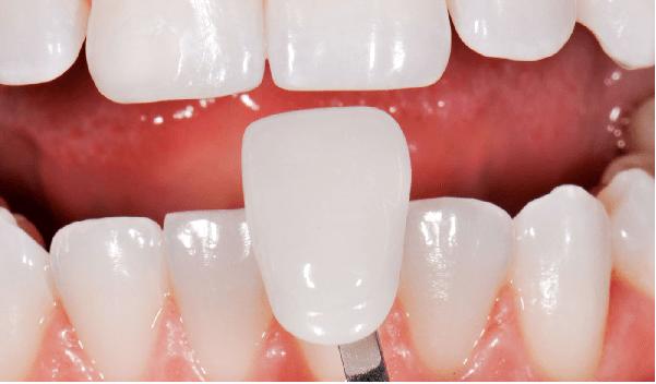 یکی از انواع لمینت دندان، لمینت کامپوزیتی است