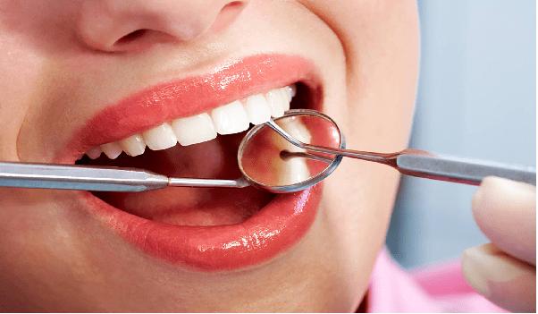 مراحل انجام لمینت شامل؛ آماده سازی دندان، قالبگیری و نصب لمینت است