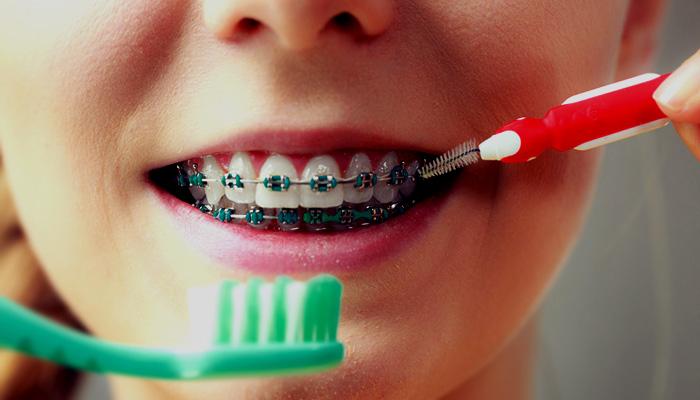 جلوگیری از بروز عوارض ارتودنسی با مراقبت از دندان ها
