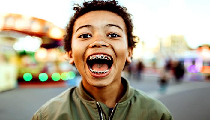 ظاهر زشت دندان ها هنگام خندیدن، از معایب ارتودنسی دندان