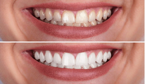عدم امکان ترمیم و برگشت ناپذیربودن درمان از جمله معایب لمینت دندان.