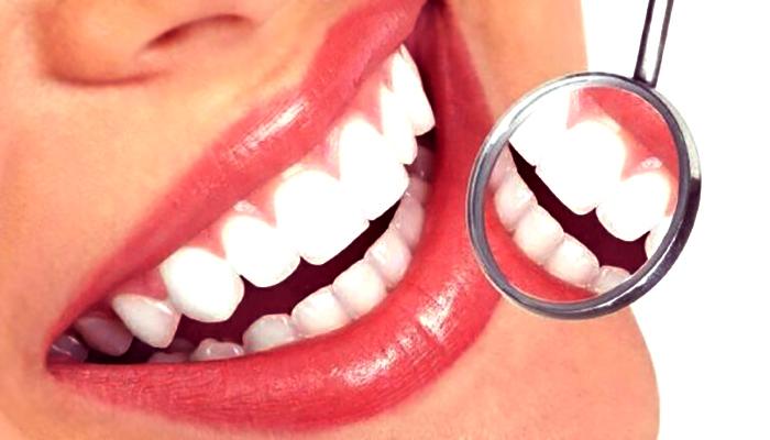 ظاهر دندان های فردی که کامپوزیت میکروفیل انجام داده است.