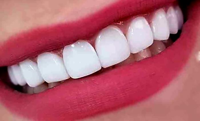 ظاهر دندان های فردی که نانو کامپوزیت انجام داده است.