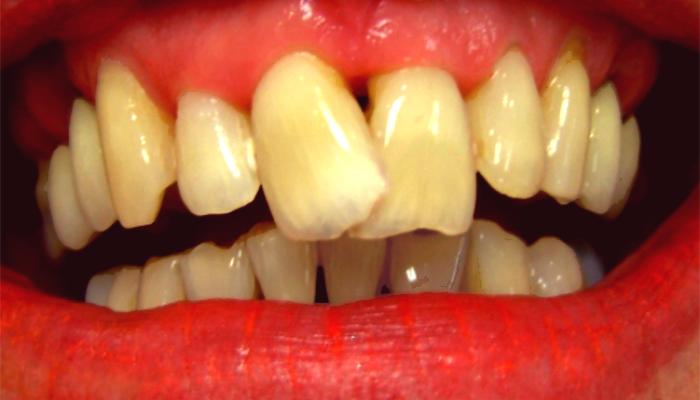 کج شدن دندان ها به علت عدم ارتودنسی دندان