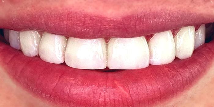 ظاهر دندان های فردی که کامپوزیت نانو هیبرید انجام داده است
