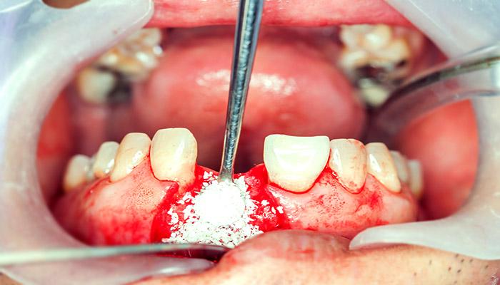 پیوند اسخوان برای ایمپلنت دندان