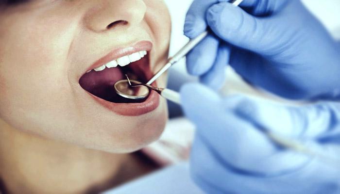 نحوه چکاپ دندان توسط دندانپزشک