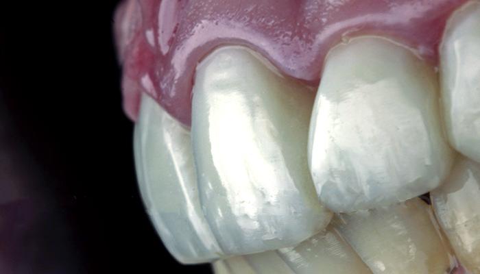 دندان روکش شده با ونیر کامپوزیت