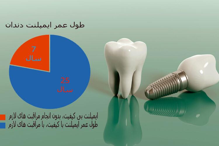 طول عمر ایمپلنت دندان