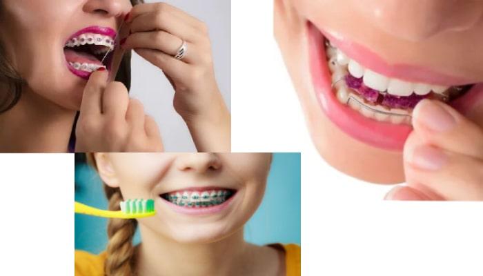 عدم رعایت بهداشت دندان ها باعث بازگشت درمان ارتودنسی می شود