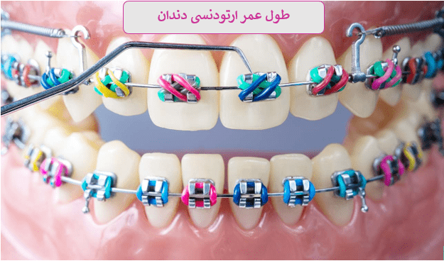 طول عمر ارتودنسی دندان چقدر است