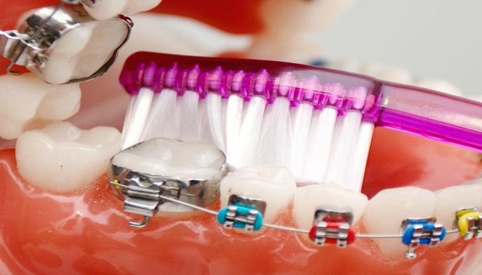 مسواک زدن با وجود براکت ها و سیم ارتودنسی باید به شیوه صحیح انجام شود تا دندان ها کاملا تمیز شود