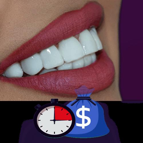 پرداخت قسطی هزینه لمینت در کلینیک دکتر سریتا
