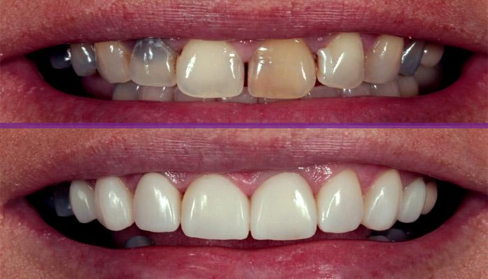 اصلاح ظاهر دندان با کامپوزیت